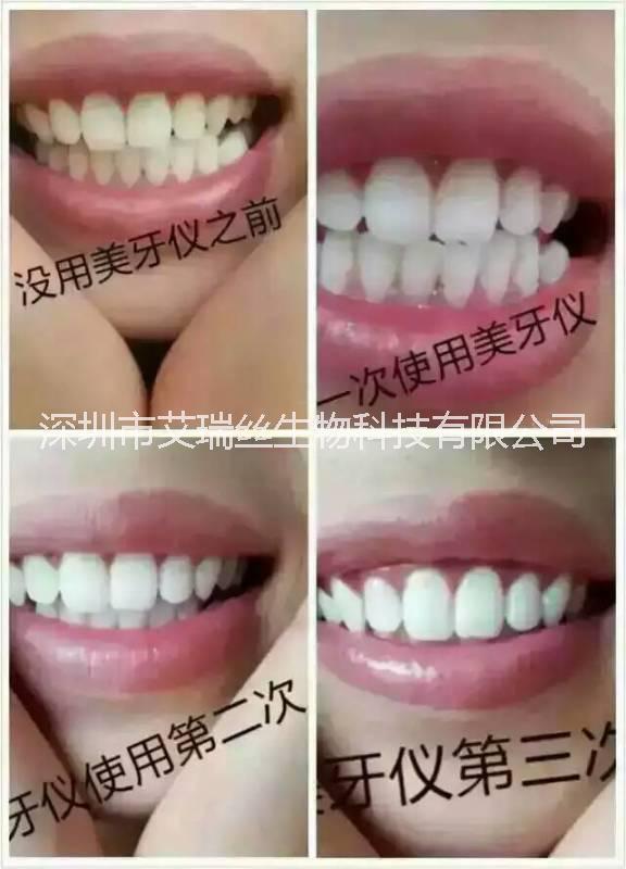 艾瑞丝牙齿美白仪销售